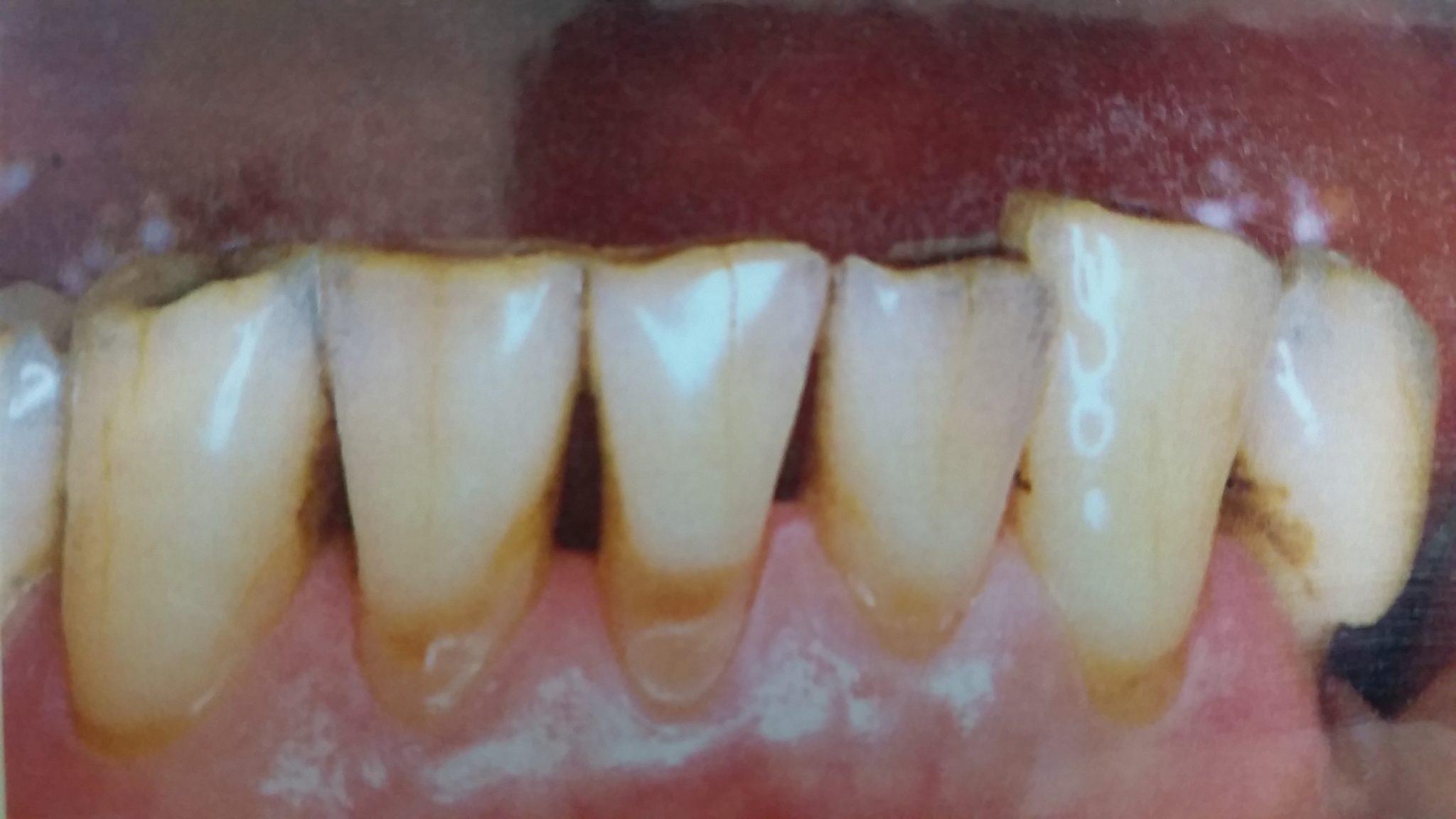 歯 が し みる 歯磨き粉